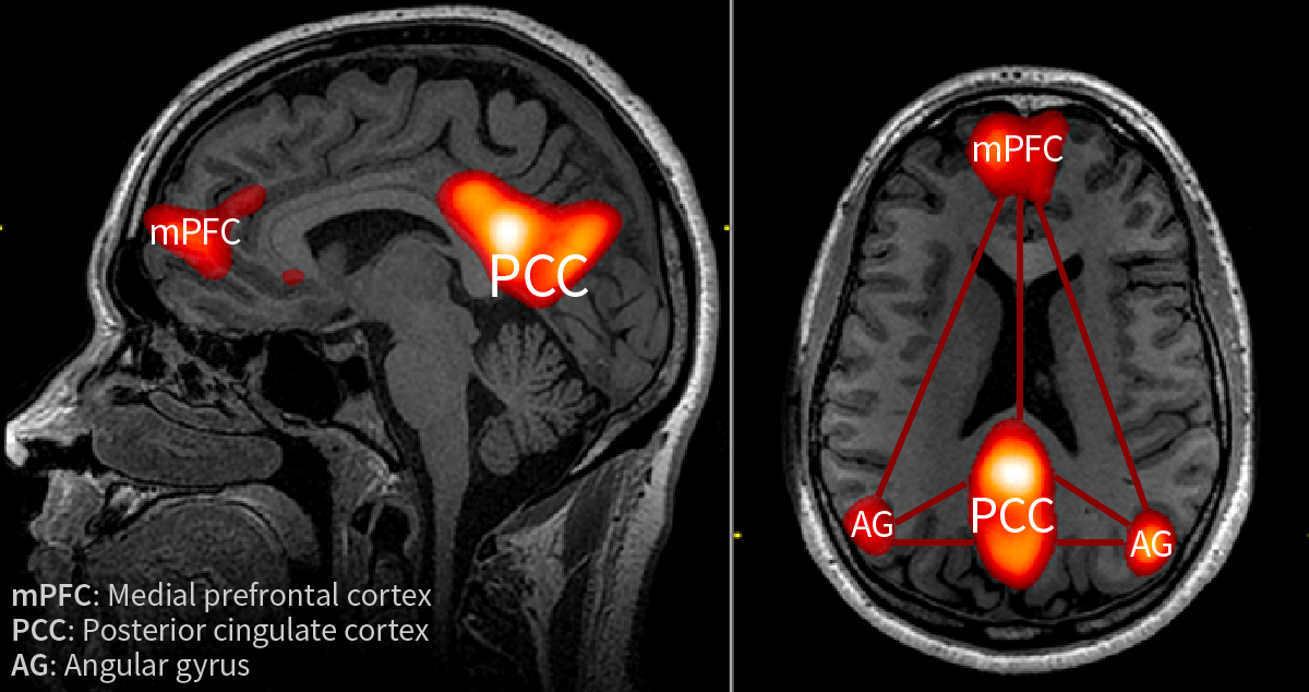 The brain's Default Mode Network (DMN) with medial prefrontal cortex (mPFC), posterior cingulate cortex (PCC) and the angular gyrus (AG)